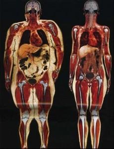 řez obézním člověkem