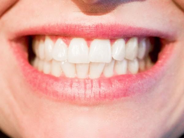 Nejhorší nepřátelé vaší zubní skloviny